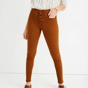 Madewell Button-front Skinny Jeans